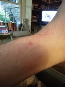 My injuries