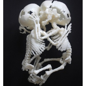 conjoined-skeleton_1448277i